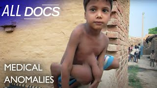 The 8 Limbed Boy - Parasitic Twin | Extraordinary People Documentary | Reel Truth