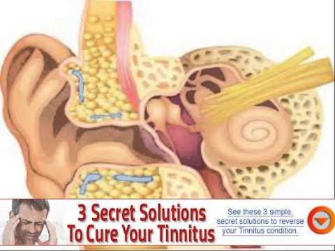 valsalva maneuver pulsatile tinnitus