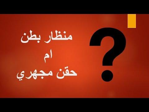 منظار بطن ام حقن مجهري؟ ايهما افضل لحالتك - د. احمد حسين