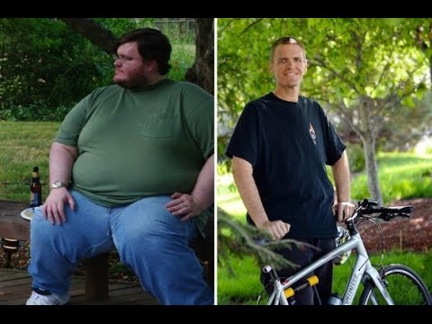 My friend Brian and his 390lbs weight-loss and his 30lbs of excess skin.