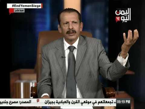 اليمن اليوم 7 5 2017