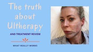Video The truth about Ultherapy   Alice Hart-Davis MP3, 3GP, MP4, WEBM, AVI, FLV Februari 2019