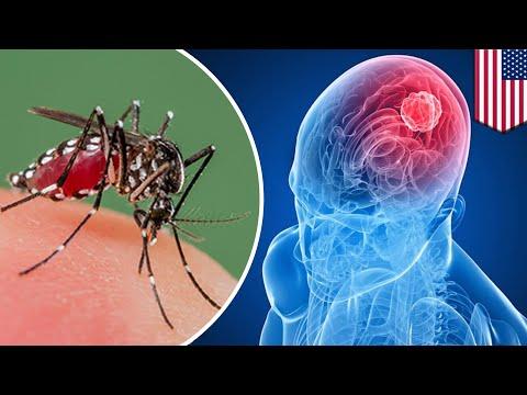 Cura del cáncer cerebral: Células del virus Zika podrían curar el cáncer cerebral - TomoNews