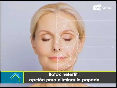 Estética al Día: Botox Nefertiti opción para eliminar la papada