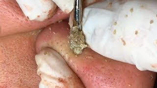 How To Remove Blackheads And Whiteheads On Nose ✦ Dr Laelia ✦