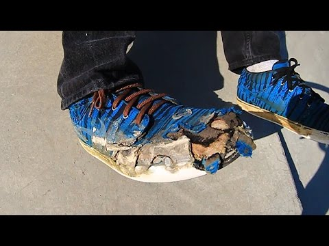 Even Worse Shoes At The Park?!