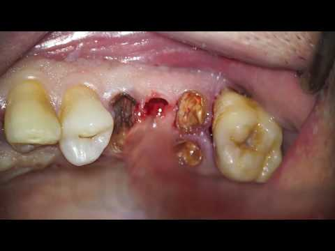 Tooth Granulation And Cyst Removal | Zerodonto