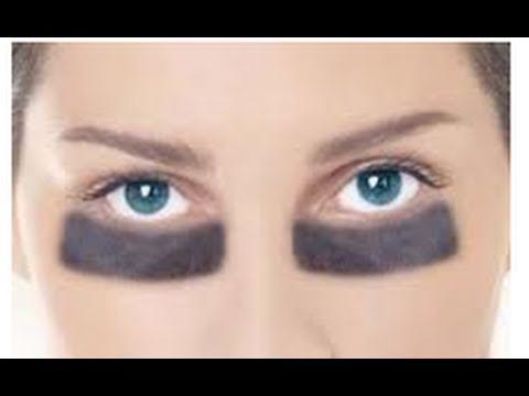 Remedio para ojeras y bolsas de los ojos. Treatment for circles & bags under eyes. Ecodaisy