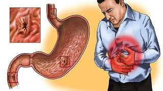 The stomach is located between the esophagus and the small intestine and is the organ where the food we eat goes to be digested.However, if we ask most people, the stomach will be more commonly associated with pain and heartburn. Illnesses can frequently affect our stomachs.Gastritis is one of the most common stomach ailments. It corresponds to inflammation of the stomach lining and, in severe cases, without treatment can cause bleeding.There are several causes of gastritis, but they are mainly related to poor eating habits, stress, abusing certain medications, alcohol consumption, and smoking.When you notice the symptoms of gastritis and have constant heartburn consult your doctor to begin treatment. You'll learn about five home made remedies that you can add to the treatment prescribed by your doctor.Resource(s):Disclaimer: The materials and the information contained on Natural Cures channel are provided for general and educational purposes only and do not constitute any legal, medical or other professional advice on any subject matter. These statements have not been evaluated by the FDA and are not intended to diagnose, treat or cure any disease. Always seek the advice of your physician or other qualified health provider prior to starting any new diet or treatment and with any questions you may have regarding a medical condition. If you have or suspect that you have a medical problem, promptly contact your health care provider.
