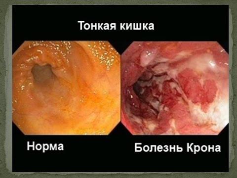 Болезнь Крона. Симптомы и лечение болезни Крона. Колит (воспаление толстого кишечника)