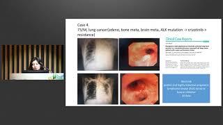 How to do long-term ventilator care? 썸네일