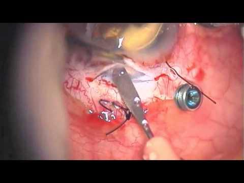 Retro-pupillary Artisan implantation