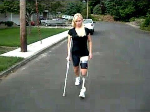 Transfemoral non-amputee prosthesis simulator (Chelsea)