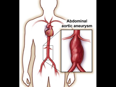 Abdominal Aortic Aneurysm (AAA)