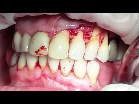 Хирургическое лечение множественных рецессий десны с ТМО №2. Часть 1