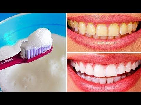 Как отбелить зубы очень быстро и результативно