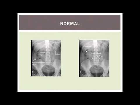 Everything you need to know about abdominal x-rays in 5 minutes