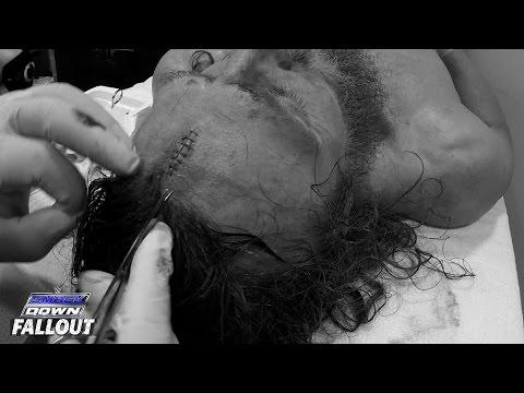 Daniel Bryan Gets Stitches: SmackDown Fallout, April 02, 2015