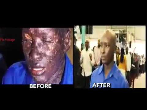Horrable Skin cracks/ disease healed /prophet W. Magaya