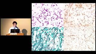 2018 아산 임상연구자 교육 프로그램(ACREP) : 성공적 수행사례 II: 대상포진과 뇌졸중 및 심근경색의 위험성에 관한 연구 - 빅데이터 연구와 다학제 연구의 중요성 미리보기