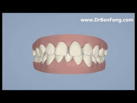 Invisalign Results for Anbien H.| Before & After | www.invisalignresults.ca
