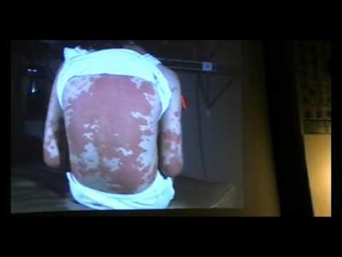 comment soigner plaque d'eczema
