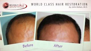 Beverly Hills hair transplant surgery results