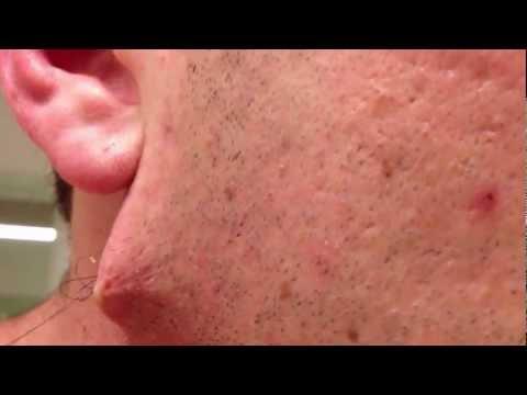 Plus long poil incarné de barbe jamais vu, sous la peau (видео)