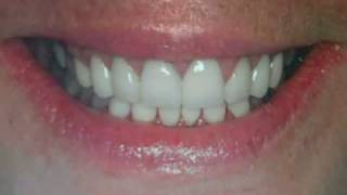 Permanently Whitening Stained Teeth