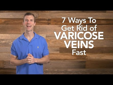7 Ways To Get Rid of Varicose Veins Fast