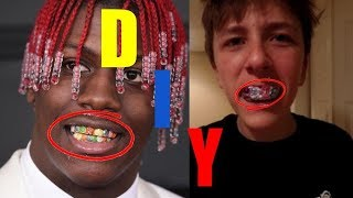 How to Make Your Own Lil Yachty Skittles Grillz (DIY)