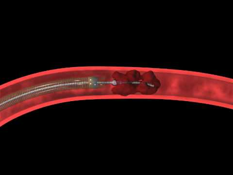 micro catheter - The Penumbra System is designed to revascularize large vessel occlusions in the intracranial circulation. The Penumbra System uses a unique microcatheter and...