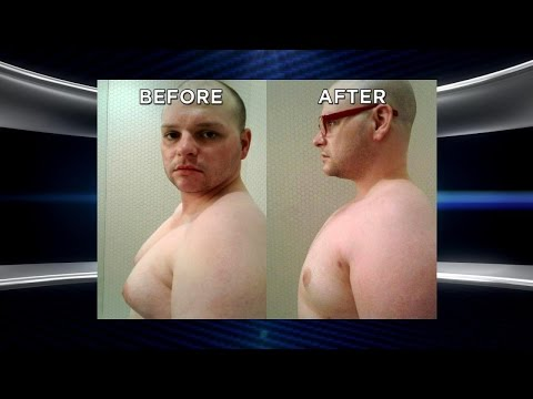 Man Whose Chest Was Ruining His Life Returns after Life-Changing Surgery