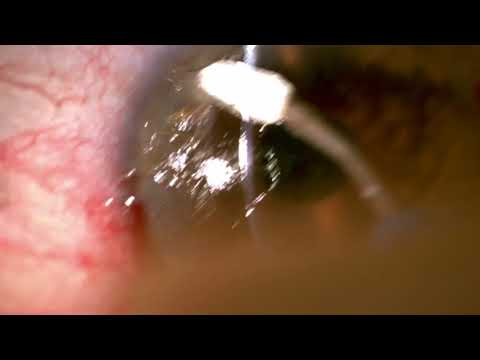Superficial Keratectomy at slit lamp by Steven G. Safran MD