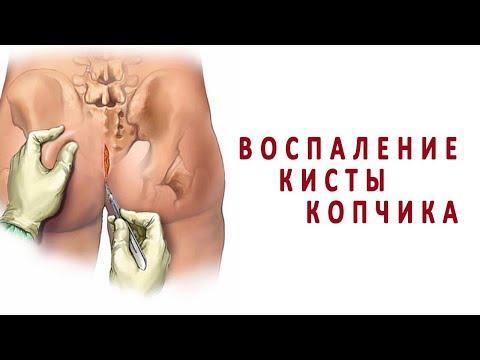 Что нужно знать о воспалении кисты копчика