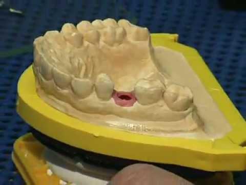 Клинико-лабораторные этапы изготовления коронки с опорой на имплантат