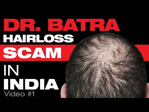 "Dr. Batra's Hair Loss Treatment Scam - ""Growing hair back is not possible"""