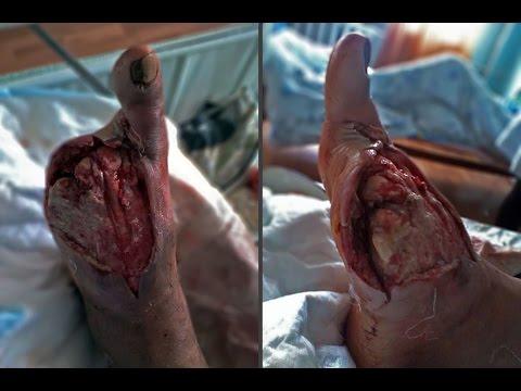 Amputation of 1-2 toes on both feet / Некрэктомия 1-2 пальцев обеих стоп 19.11.2009