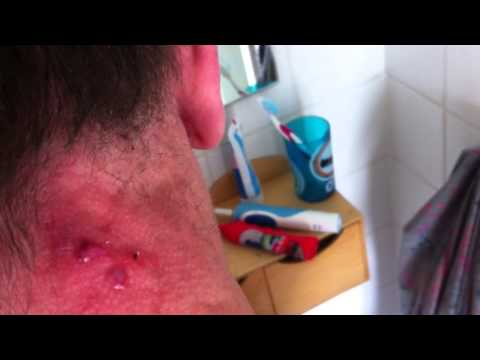 Nooit meer acne! Popping pimple zit cyst, Cystic acne exploding, Puist uitknijpen