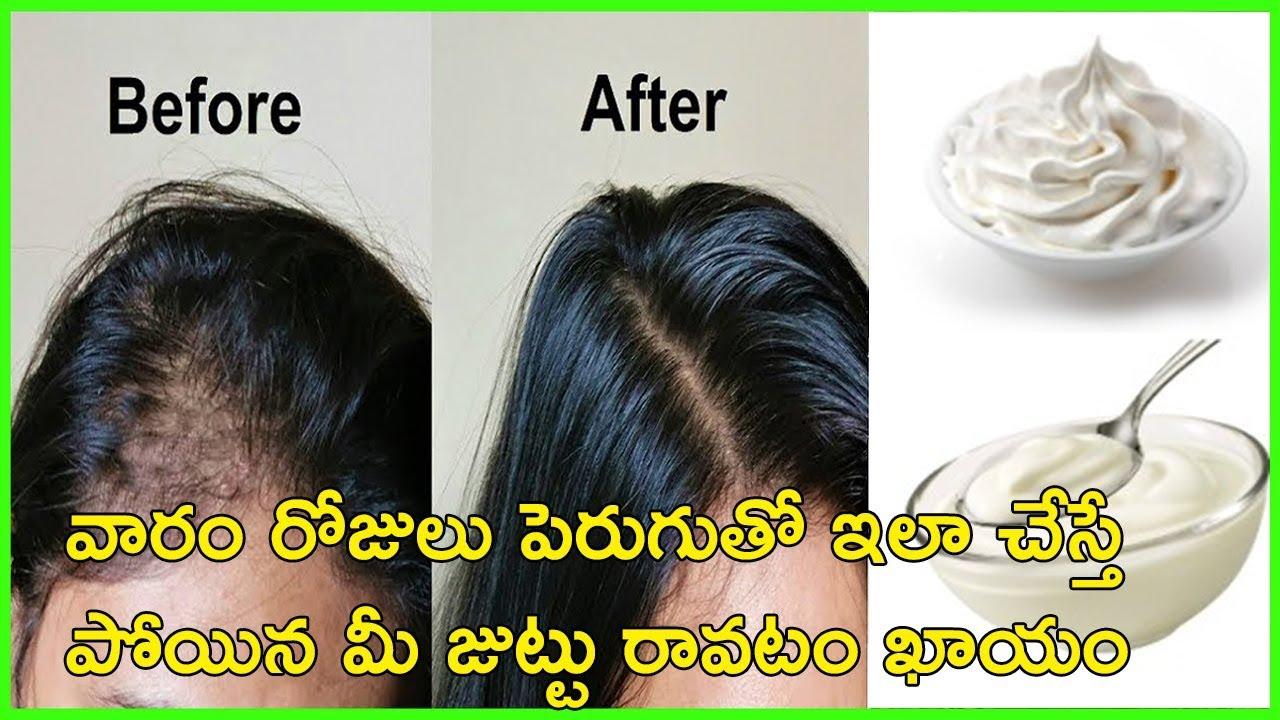 జుట్టు రాలటం సమస్యతో బాధపడుతున్నార అద్బుతమైన చిట్కా | How To Use Curd for Reducing Hair Loss