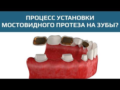 Зубной мост для замещения нескольких зубов