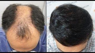 Video 6103 FU's. Hair Transplant by FUE Technique. Shaved HT. Injertocapilar.com 590/2011 MP3, 3GP, MP4, WEBM, AVI, FLV Februari 2019