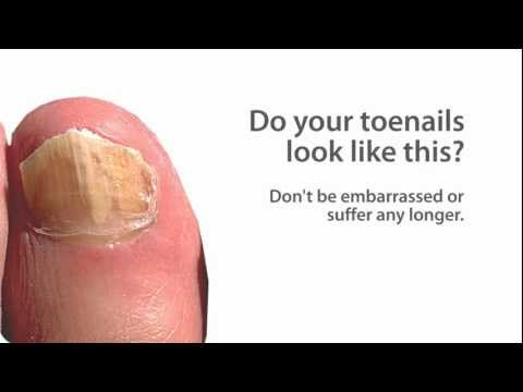 PinPointe FootLaser - Nail Fungus Treatment