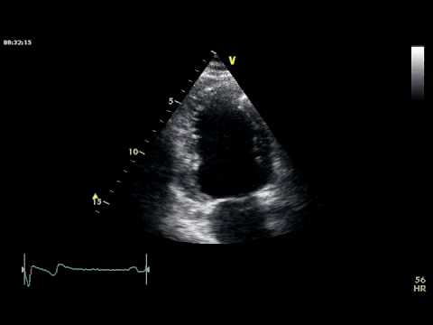 LV RVMA / LEFT VENTRICULAR REGIONAL WALL MOTION ABNORMALITIES