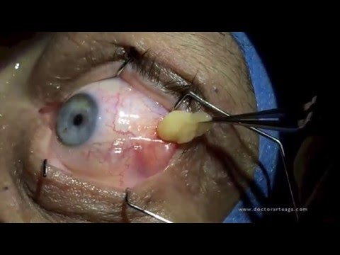 Cyst Being Removed from Eye!