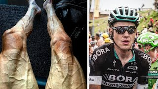 1. Polish cyclist Pawel Poljanski, who is just days away from reaching the finish line of this year's Tour de France, recently posted a photo of his legs that has captivated and grossed out the internet.