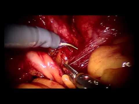 Stöckle/Ohlmann: Radikale Cystoprostatovesiculektomie mit Anlage einer Ileum-Neoblase