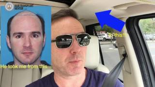 Video The Hair Transplant Mentor - Hair Transplant Education & Hair Loss Information MP3, 3GP, MP4, WEBM, AVI, FLV November 2018