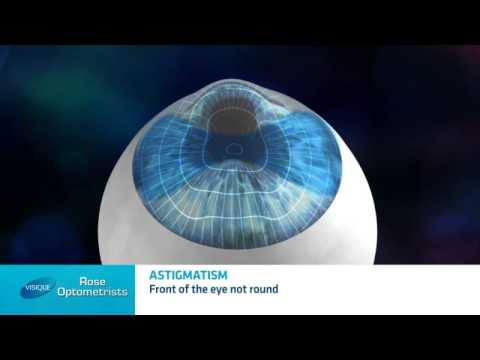 What is astigmatism? – Rose Optometrists explain