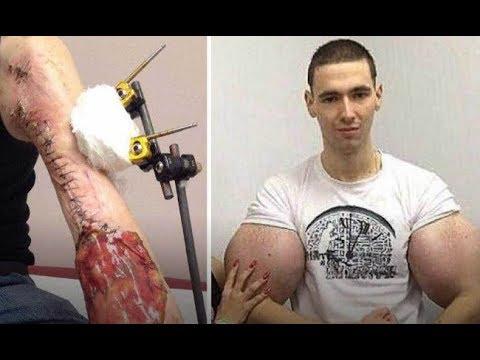 Отрезанные руки-базуки Кирилла Терешина 18+ - DomaVideo.Ru